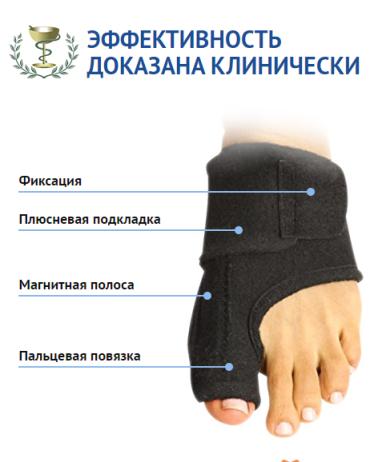 шишки на ногах лечение йодом и анальгином