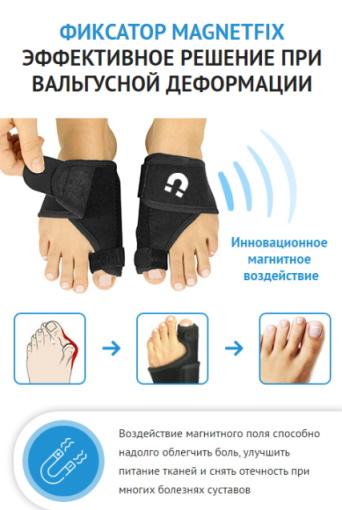 шишки на ногах лечение форум